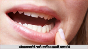 Mucocele Roof Of Mouth