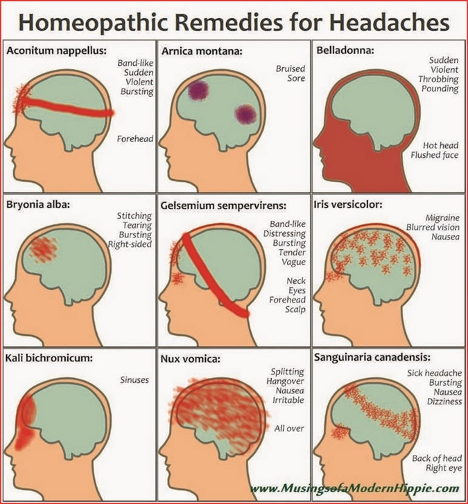 Headache Location And Meaning