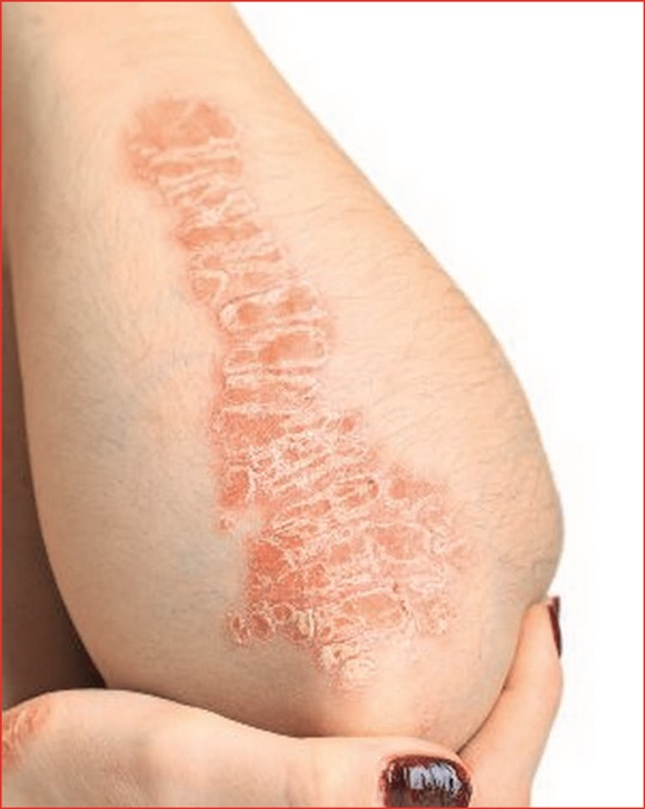 How Do You Get Psoriasis Skin Disease